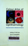 Colour atlas of ophthalmology